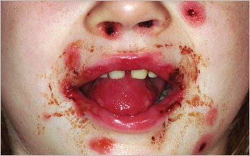 A previously healthy, 4-year-old female with unusual skin lesions and mouth sores