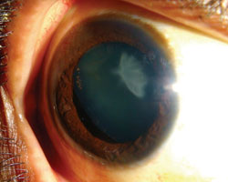 An eye with an excessively deep anterior chamber and a traumatic cataract
