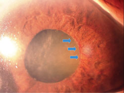 Anterior segment neovascularization, such as the rubeosis iridis pictured here