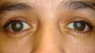 Bilateral white cataracts are a common cause of blindness in Tonga.
