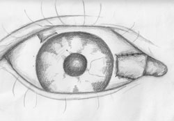 Figure 4. The conjunctival graft is turned and held in position to cover the entire scleral bed.