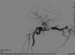 Figure 3. Angiography, lateral view, demonstrating right high-flow CCF (red arrow)  causing enlargement of the superior ophthalmic vein (blue arrow)