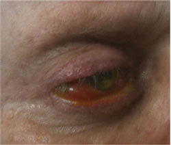 Figure 4. After embolization of the carotid cavernous sinus fistula.