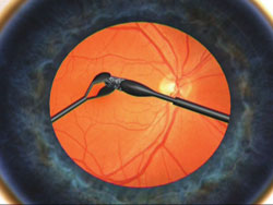 Figure 3. Handshake technique to remove an intraocular foreign body.