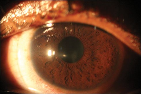 advanced keratoconus with scleral lens in place