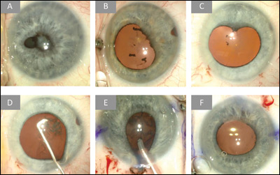 Intraoperative stills obtained during the time of cataract surgery