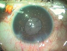 Patient with astigmatism