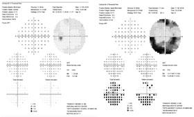 Humphrey visual field
