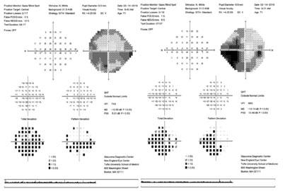 Initial Humphrey visual field