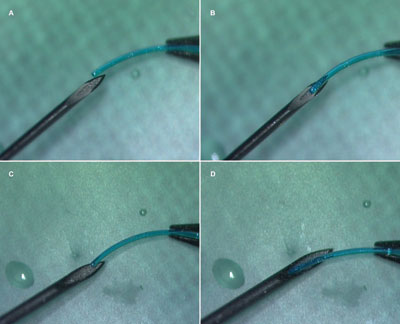 Preoperative trial of threading the IOL haptic