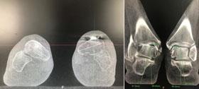 Weightbearing imaging