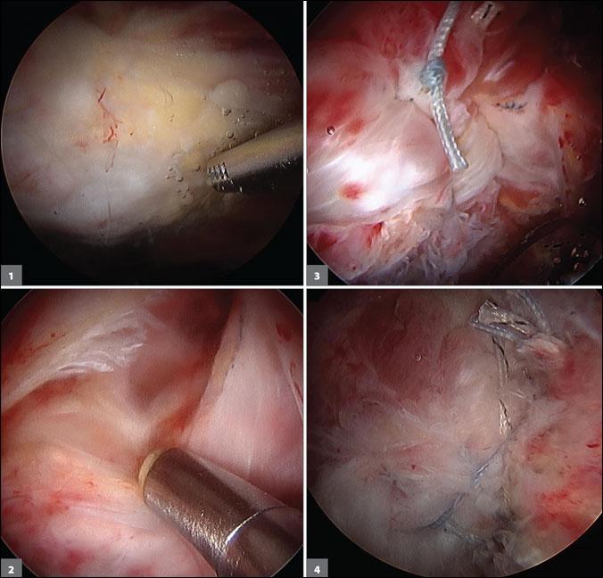 endoscopic repair of gluteus medius tear