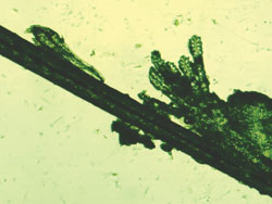 View of multiple mites coming from a collarette.