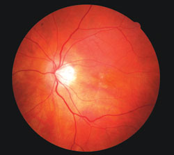 This 58-year-old patient complained of reduced vision 5 years earlier. He had a history of smoking one pack per day for 24 years. Early retinal pigment epithelium changes were evident as well as thinning on the ocular coherence tomography image. The patient was counseled regarding smoking cessation therapy and successfully completed the program with no regression. Nutritional therapy was prescribed without beta carotene. Retinal findings have been stable, but cataract formation has progressed in the 5 years of follow-up.