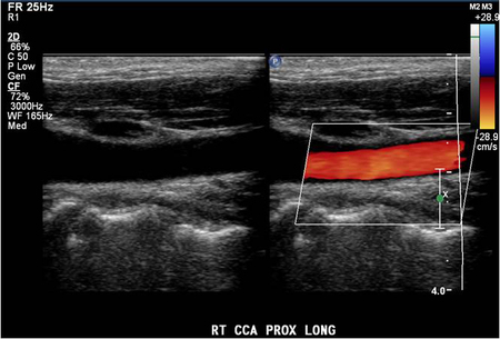 A tiny amount of hard plaque was seen in the posterior wall of the carotid bulb and perhaps also at the origin of the right internal carotid artery.