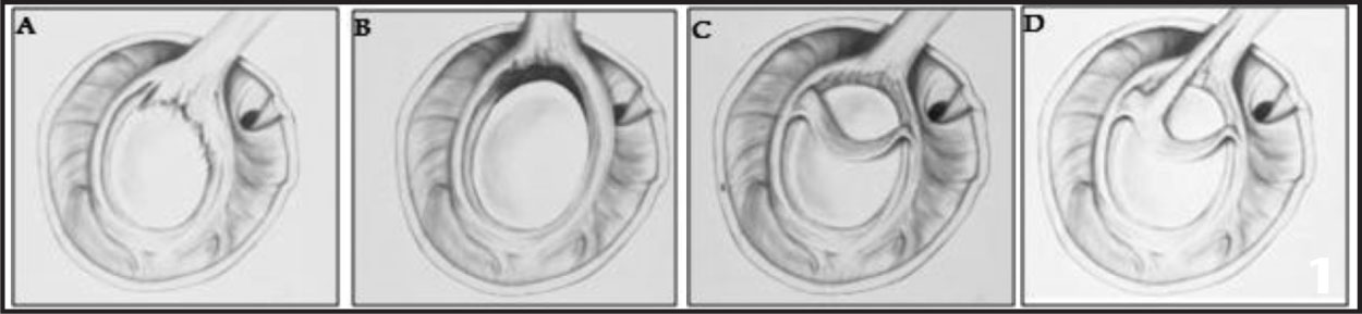 Illustrations Depicting the 4 Types of SLAP Lesions. Type I (A) Has a Frayed or Degenerative Labrum with the Labrum and Biceps Tendon Remaining Attached to the Glenoid. Type II (B) Has Detachment of the Superior Labrum and Biceps Tendon from the Glenoid. Type III (C) Has a Bucket-Handle Tear of the Labrum with an Intact Biceps Tendon Anchored to the Glenoid. Type IV (D) Has a Bucket-Handle Tear of the Labrum that Extends into the Biceps Tendon. (Reprinted with Permission from Mileski RA, Snyder SJ. Superior Labral Lesions in the Shoulder: Pathoanatomy and Surgical Management. J Am Acad Orthop Surg. 1998;6:121–131. Copyright ©1998, American Academy of Orthopaedic Surgeons.)