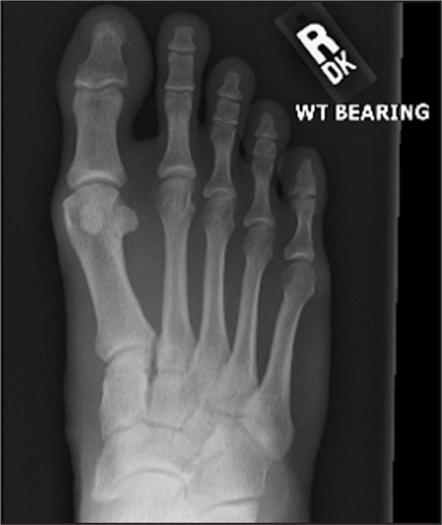 Right Foot Weight (WT) Bearing AP View, for Comparison with Figure 2.
