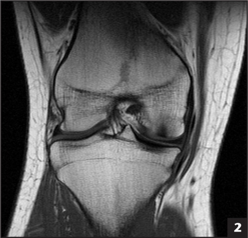 Frontal view of osteochondral defect on magnetic resonance imaging.