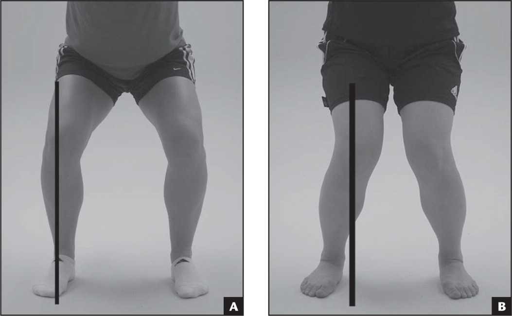 (A) Control participant during the overhead squat test. The center of the patella stays over the mid-foot. (B) Medial knee displacement group participant: the center of the patella moves medial to the great toe.