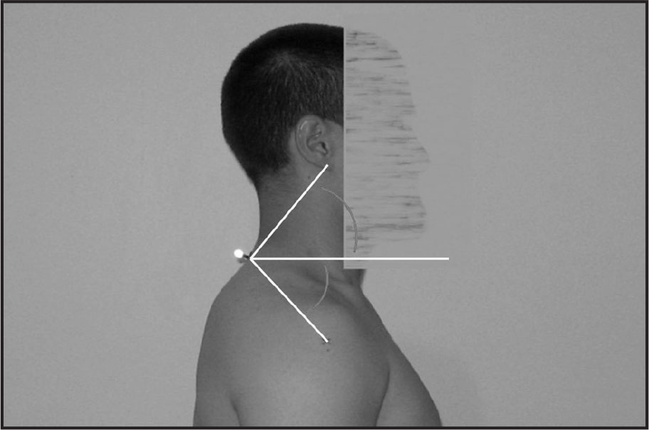 The arc indicates the angle measured to assess the degree of forward head posture and forward shoulder posture.