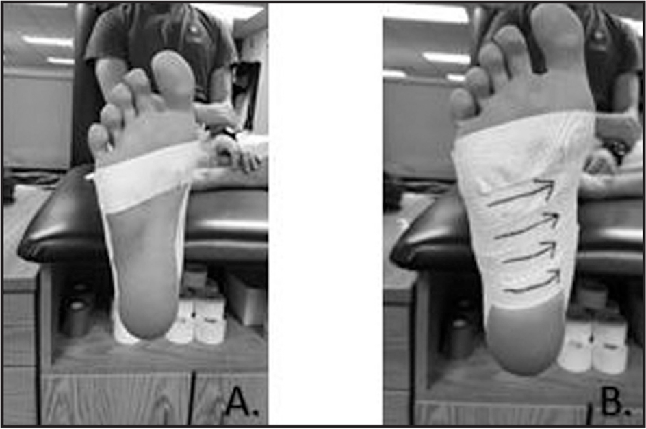 Low-dye medial longitudinal arch taping technique used in the study.