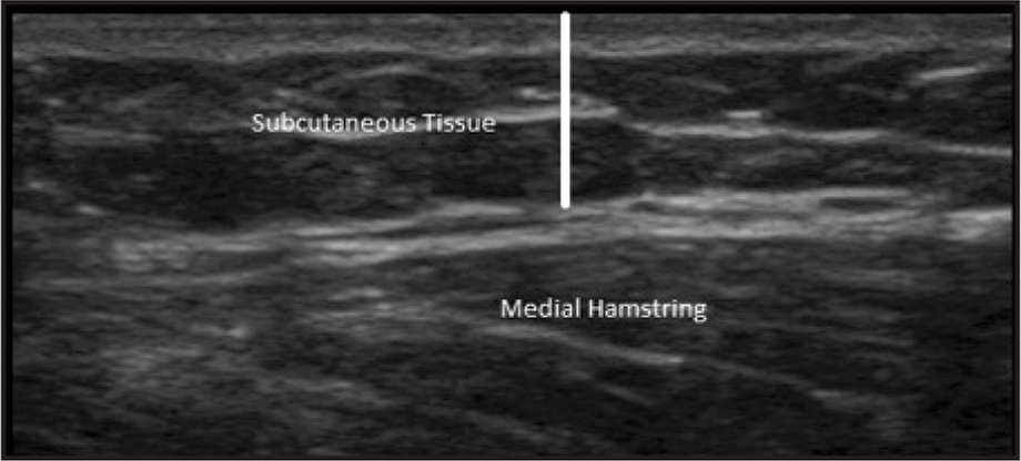 Measurement of subcutaneous tissue was calculated from the top of the first fascial border of muscle to the top of the subcutaneous tissue.