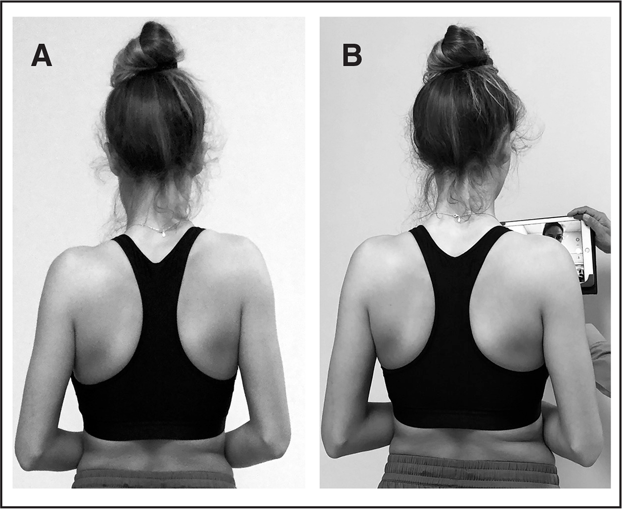 Conscious correction (A) with shrug and (B) using visual feedback.