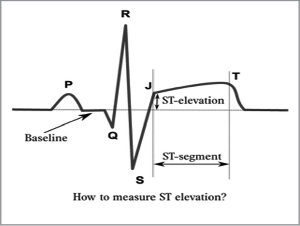 Depiction of ST elevation and J point. Reprinted with permission from https://ECGpedia.org.