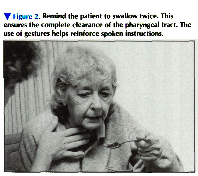 * Figure 2. Remind the patient to swallow twice. This ensures the complete clearance of the pharyngeal tract. The use of gestures helps reinforce spoken instructions.