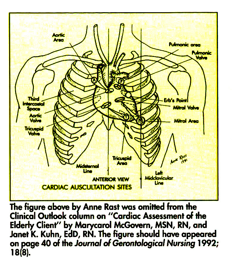 """The figure above by Anne Rast was omitted from the Clinical Outlook column on """"Cardiac Assessment of the Elderly Client"""" by Marycarol McGovern, MSN, RN, and Janet K. Kuhn, EaD, RN. The figure should have appeared on page 40 of the Journal of Gerontological Nursing 1 992; 18(8)."""