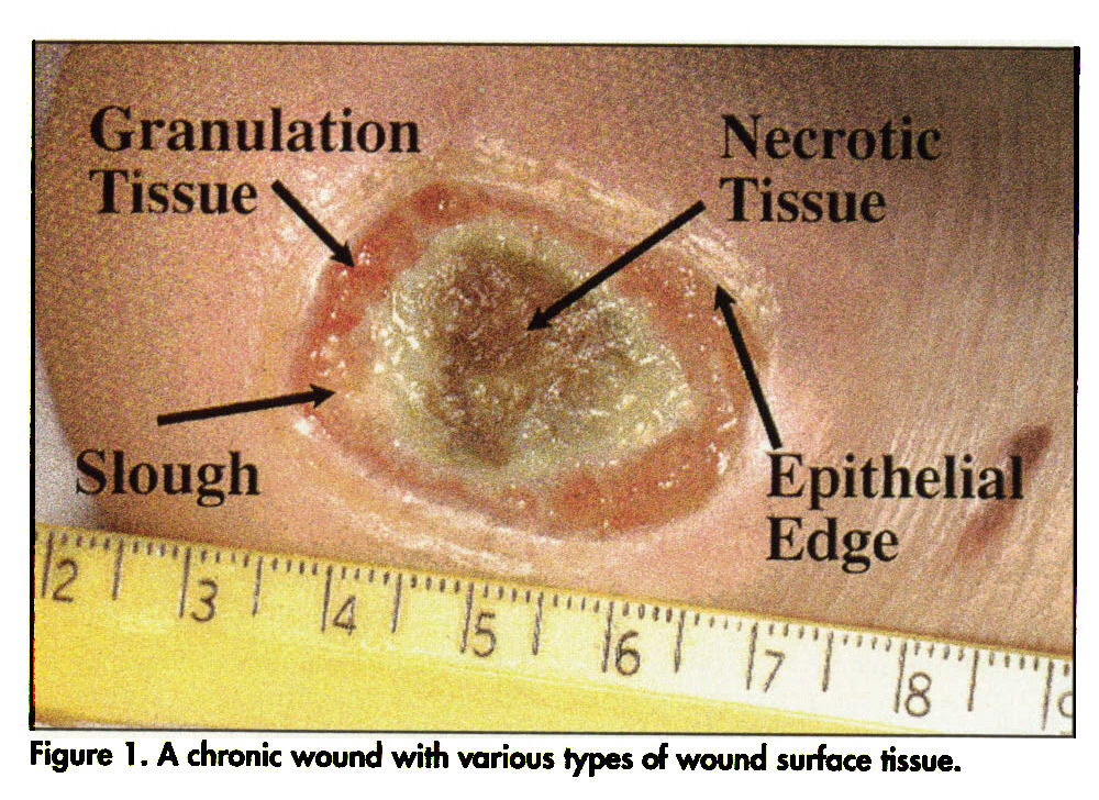 Figure 1 . A chronic wound with various types of wound surface tissue.