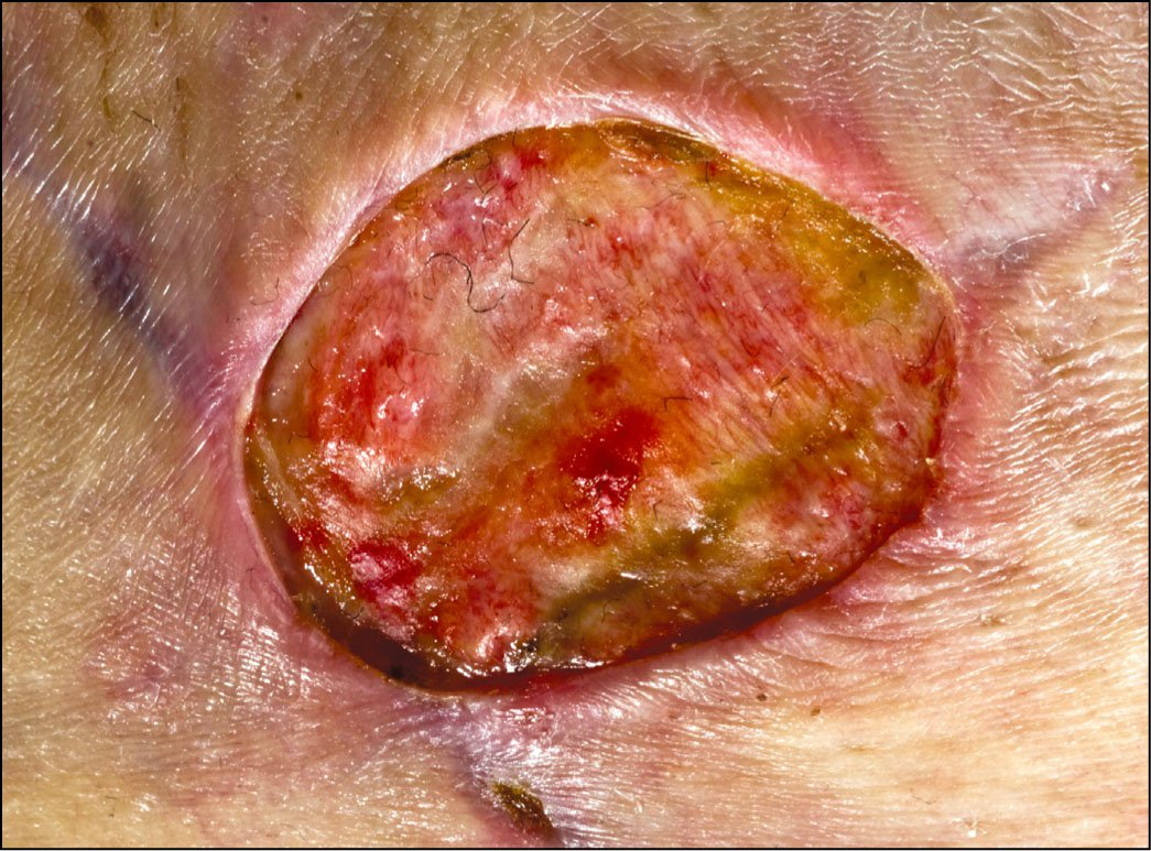 Photo of a Wound Infected with Methicillin-Resistant Staphylococcus aureus.© 2009 iStockphoto LP/Jodi Jacobson