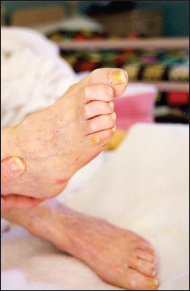 Hammertoes and Painful Corn on the Fifth Toe.Photo Credit: Teresa J. Kelechi, PhD, RN, GCNS-BC, CWCN.