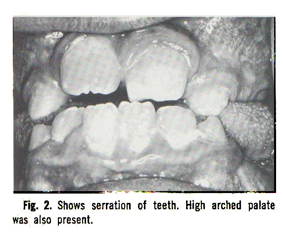 Fig. 2. Shows serration of teeth. High arched palate was also present.