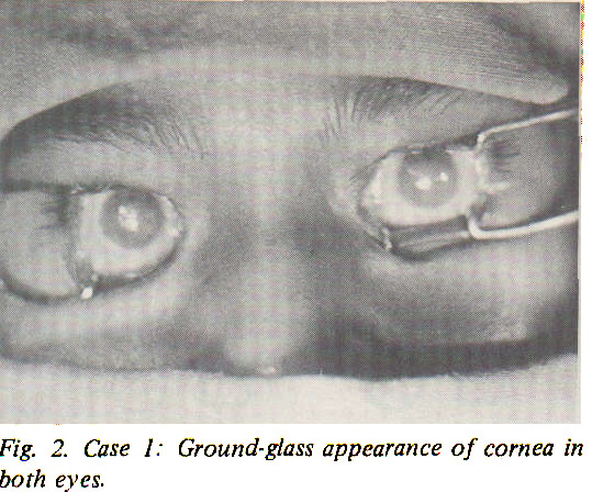 Fig. 2. Case I: Ground-glass appearance of cornea in both eves.