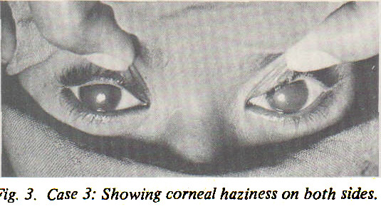 Fig. 3. Case 3: Showing corneal haziness on both sides.