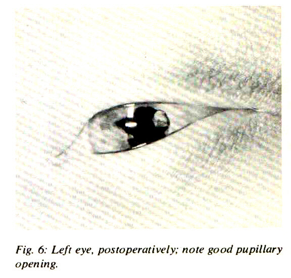 Fig. 6: Left eye, postoperatively; note good pupillary opening.