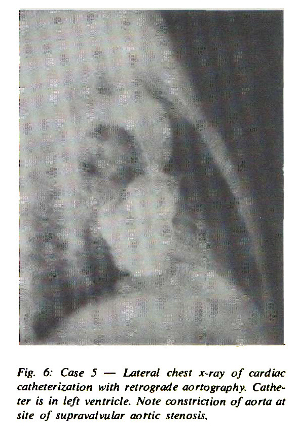 Fig. 6: Case 5 - Lateral chest x-ray of cardiac catheterization with retrograde aortography. Catheter is in left ventricle. Note constriction of aorta at site of supravalvular aortic stenosis.