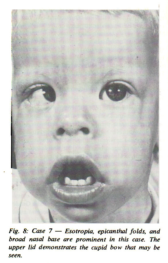 Fig. 8: Case 7 - Esotropia, epicanthal folds, and broad nasal base are prominent in this case. The upper lid demonstrates the cupid bow that may be seen.