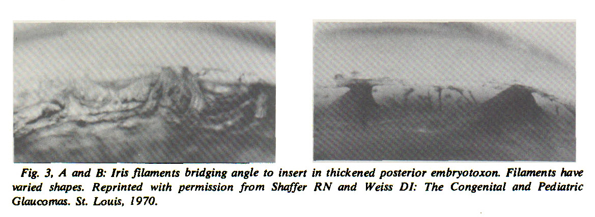 Fig. 3, A and B: Iris filaments bridging angle to insert in thickened posterior embryotoxon. Filaments have varied shapes. Reprinted with permission from Shaffer RN and Weiss DI: The Congenital and Pediatric Glaucomas. St. Louis, 1970.