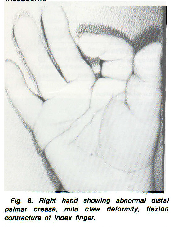 Fig. 8. Right hand showing abnormal distal palmar crease, mild claw deformity, flexion contracture of index finger.
