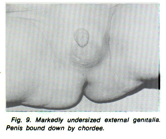 Fig. 9. Markedly undersized external genitalia. Penis bound down by chordee.