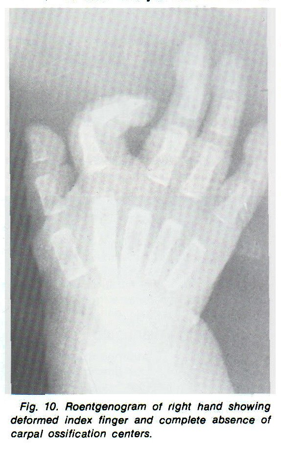 Fig. 10. Roentgenogram of right hand showing deformed index finger and complete absence of carpal ossification centers.