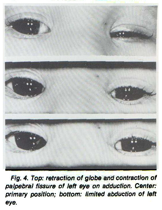 FIg. 4. Top: retraction of globe and contraction of palpebral fissure of left eye on adduction. Center: primary position; bottom: limited abduction of left eye.