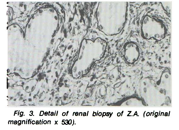 Fig. 3. Detail of renal biopsy of Z.A. (original magnification ? 530).