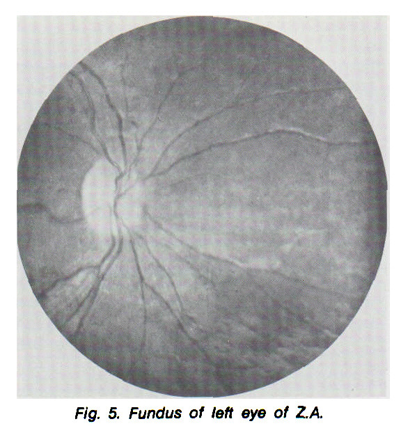 Fig. 5. Fundus of left eye of ZA.