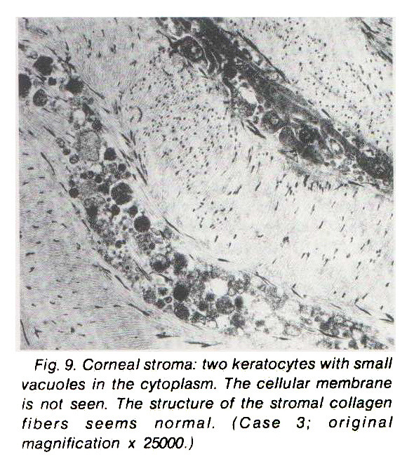Fig. 9. Corneal stroma: two keratocytes with small vacuoles in the cytoplasm. The cellular membrane is not seen. The structure of the stromal collagen fibers seems normal. (Case 3; original magnification ? 25000.)