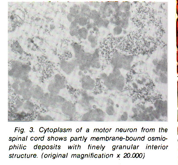 Fig. 3. Cytoplasm of a motor neuron from the spinal cord shows partly membrane- bound osmiophilic deposits with finely granular interior structure, (original magnification x 20.000)