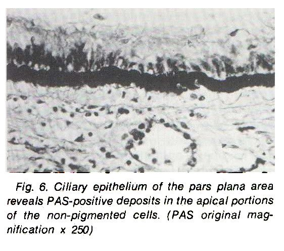 Fig. 6. Ciliary epithelium of the pars plana area reveals PAS-positive deposits in the apical portions of the non-pigmented cells. (PAS original magnification x 250)