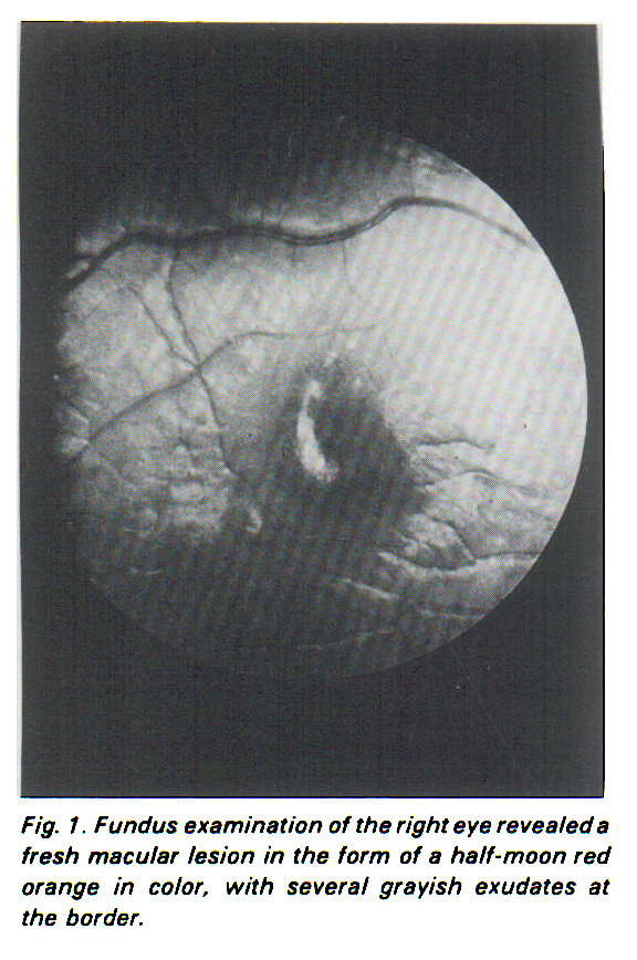 Fig. 1. Fundus examination of the right eye revealed a fresh macular lesion in the form of a half-moon red orange in color, with several grayish exudates at the border.
